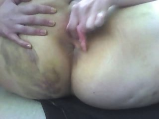 Bruised ass squirting chubby